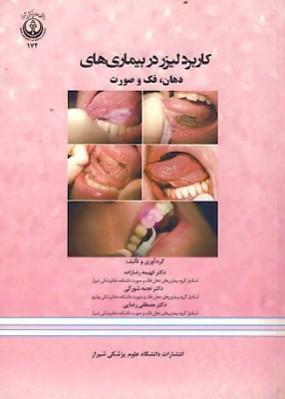 کاربرد لیزر در بیماریهای دهان، فک و صورت
