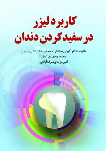 کاربرد لیزر در سفید کردن دندان