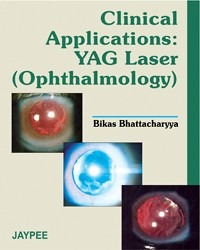 Clinical Applications: YAG Laser (Ophthalmology)