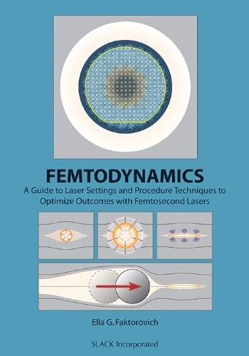 Femtodynamics: A Guide to Laser Settings and Procedure Techniques to Optimize Outcomes with Femtosecond Lasers