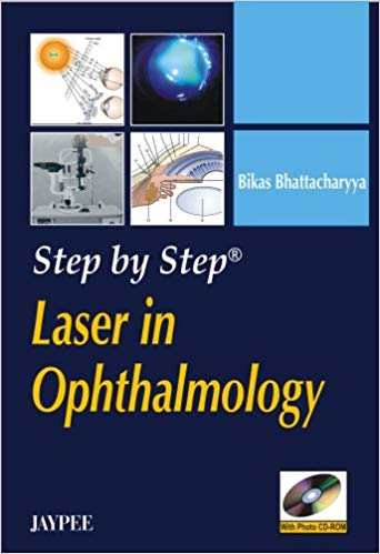 Step by Step Laser in Ophthalmology