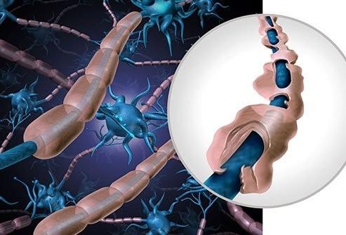 https://images.emedicinehealth.com/images/article/main_image/myelin-sheath-damage.jpg